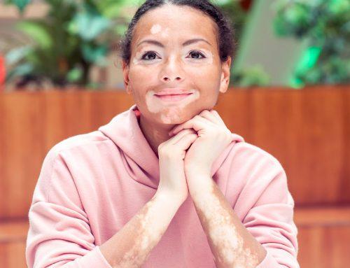 Vitiligo: tipos, diagnóstico e tratamentos
